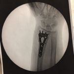 a top-view X-ray of my wrist fracture post-surgery show my 3 plates and 21 pins and screws