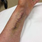 my wrist after the follow-up surgery - cast has just been removed and stitches are about to come out